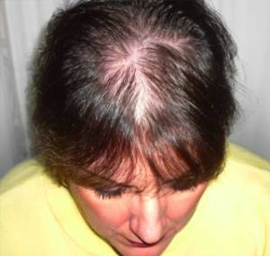 Hair Loss - Female Hair Loss - Male Hair Loss - Hair Loss Solutions - Hair Loss Remedies
